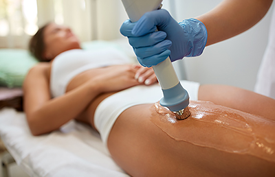 Image result for cellulite treatment
