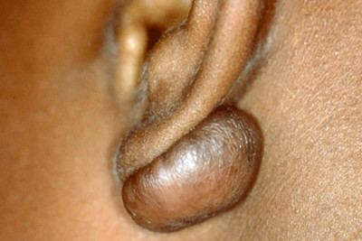Keloid on a girl's earlobe
