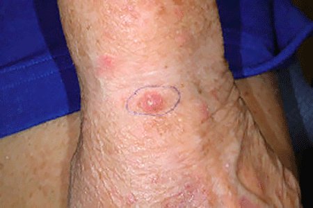 A reddish, scaly, and slightly raised spot on this patient's wrist is Merkel cell carcinoma