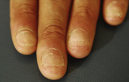 picture of brittle fingernails