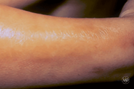 Scleroderma patches on arm