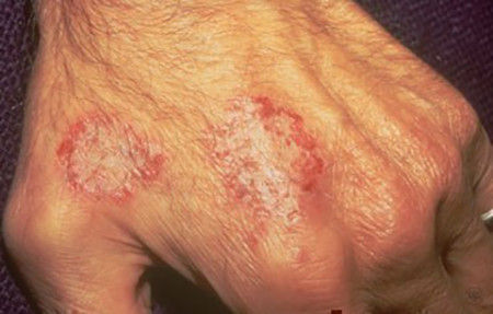 Nummular dermatitis rash on hand