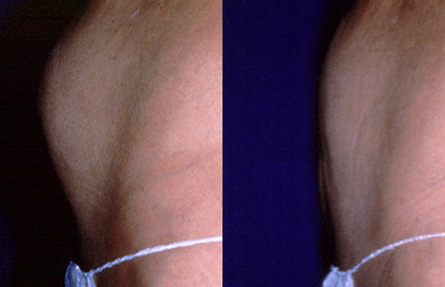 Before and after tumescent liposuction