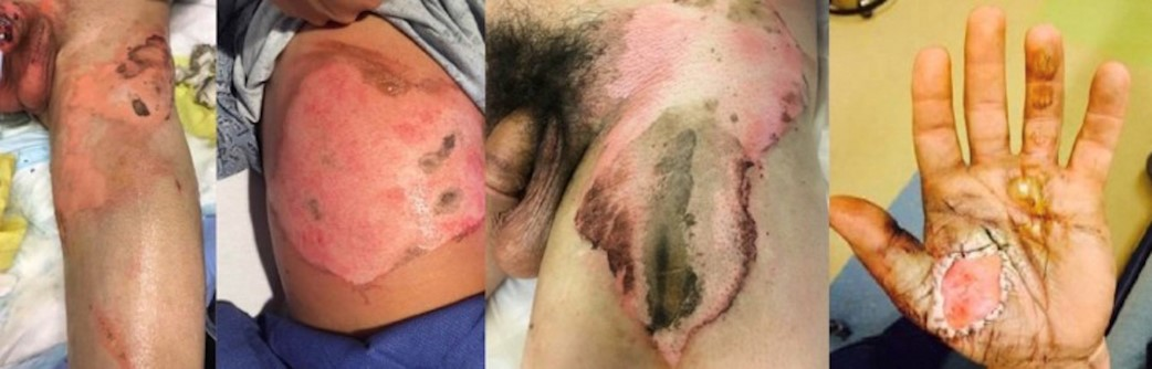DWII image of injuries and cutaneous conditions caused by e-cigarettes