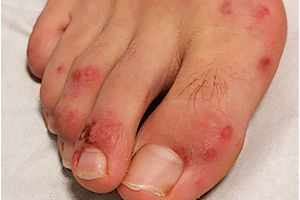 Coronavirus rash on patient's foot