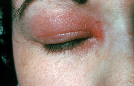 Allergic reaction on eyelid