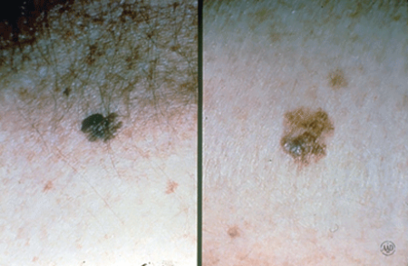 Close-up images of melanoma that look like an odd-shaped mole