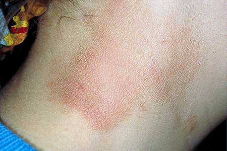 Neurodermatitis on neck