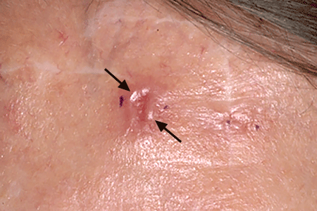 Skin Cancer Types Basal Cell Carcinoma Signs And Symptoms