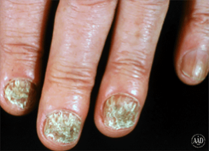 Ringworm infection on several nails