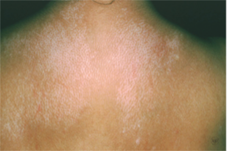 Scleroderma can cause a salt-and-pepper look to the skin