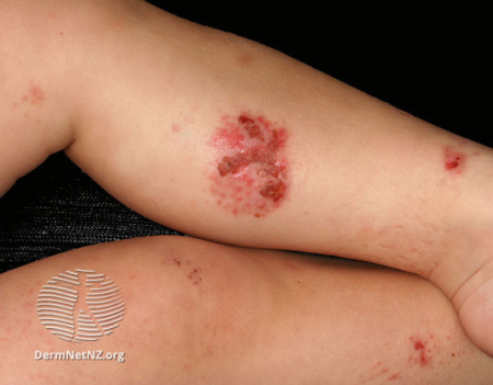 atopic dermatitis on legs