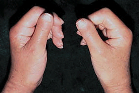 Woman is unable to straighten her fingers from diffuse cutaneous scleroderma