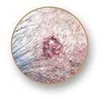 Close-up image of a basal cell carcinoma skin cancer