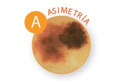 Public>Diseases>Skin-cancer>Types>Melanoma>Symptoms>Asymmetry (Spanish)