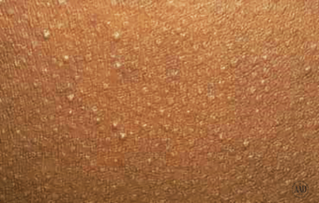 Keratosis pilaris can appear in many colors, including skin colored and white