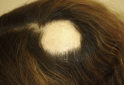 bald spot on top of head