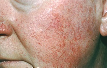 Woman with rosacea subtype 1