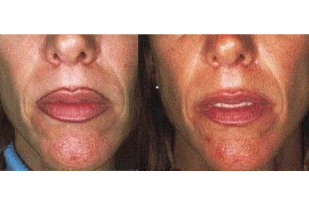 Before and after pictures of laser tattoo removal around the lips