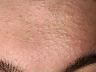woman's forehead with whiteheads