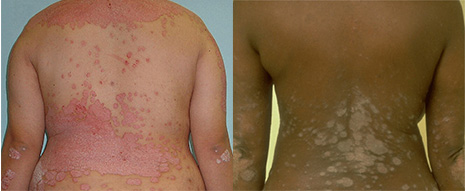 psoriasis on back of white woman and black woman