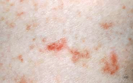 Close-up of scabies on the skin
