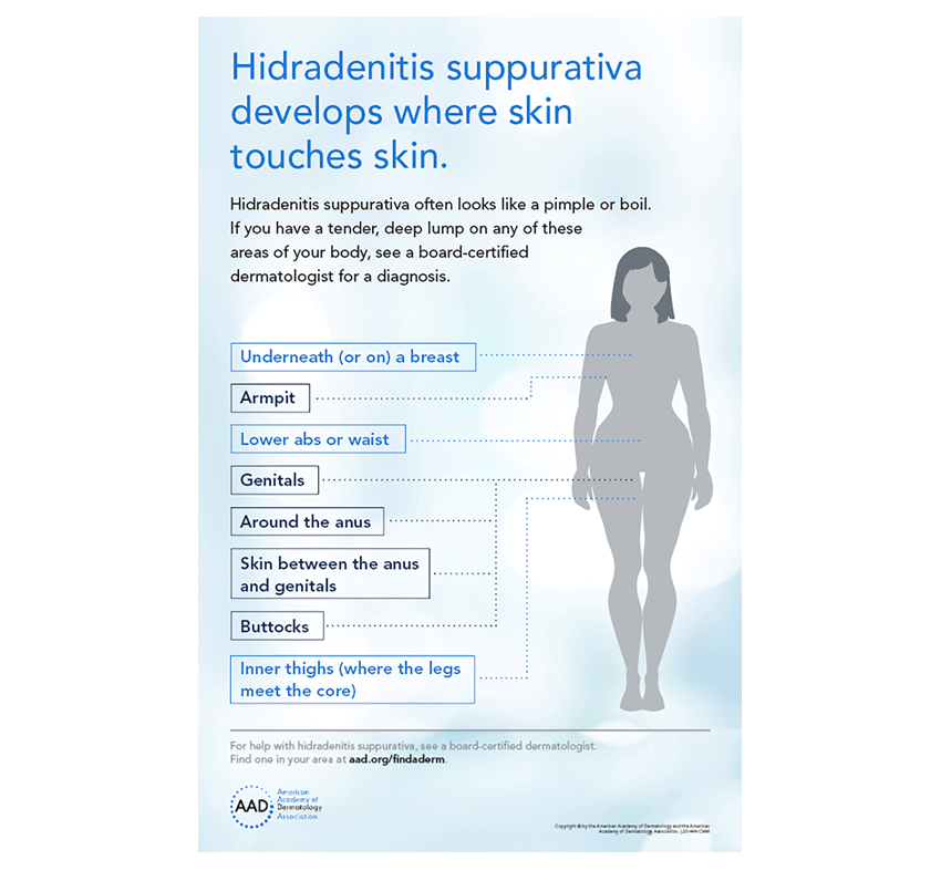 Infographic of where hidradenitis suppurativa can develop on the skin.
