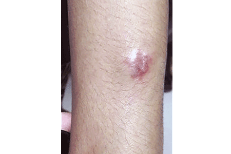Plaque sarcoidosis on a woman's arm