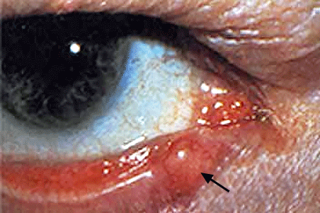 A growth on a man's lower eyelid is sebaceous carcinoma