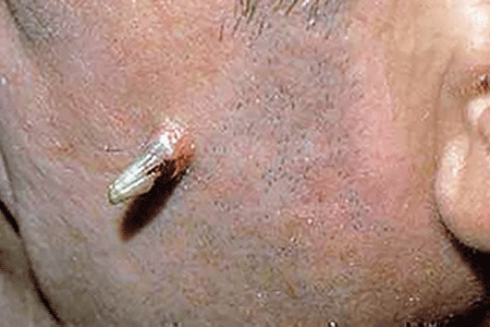 The animal-like horn on the side of this man's face is an actinic keratosis