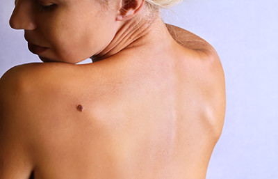 Woman looking over shoulder at unattractive mole