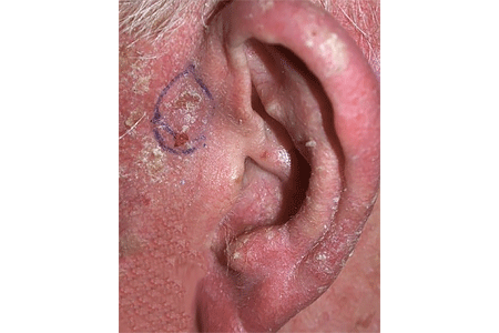 Close-up of scaly patch of skin near the ear develops into basal cell carcinoma