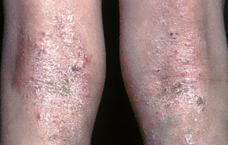 severe atopic dermatitis knees