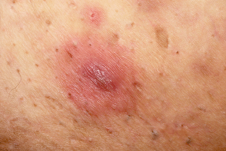 Hidradenitis suppurativa can look like a boil or pimple.