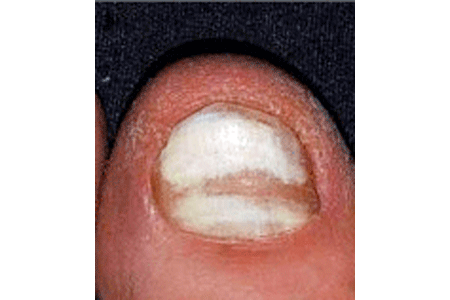 Nail fungus causes changes to this infected nail