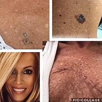 Public>Public-health>Skin-cancer-awareness>Story>Jamy-Gilinksy