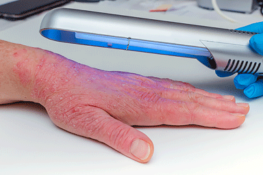 Phototherapy treatment on the hand