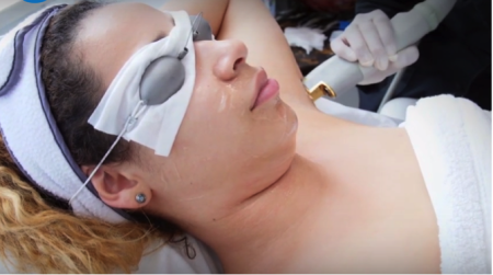 woman undergoing hair removal procedure