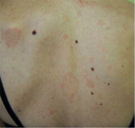Pityriasis rosea large patches