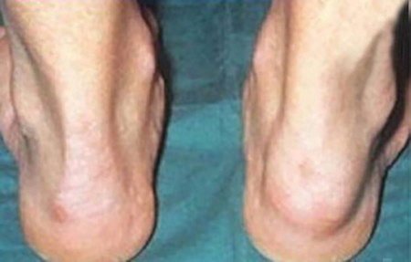 Swollen Achilles tendon with psoriatic arthriti