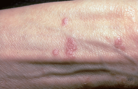 Lichen planus bumps on the wrist