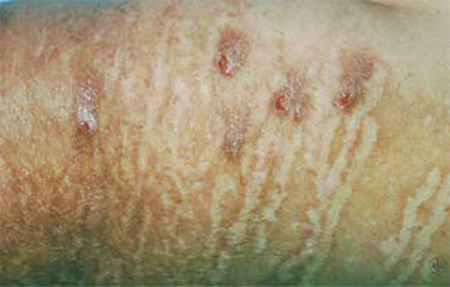 Scarring on skin with Neurodermatitis