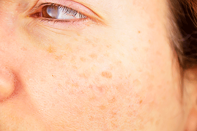 Close-up of a woman cheek with age spots caused by sun exposure
