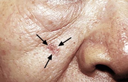 An actinic keratosis precancerous skin growth on a man's cheek