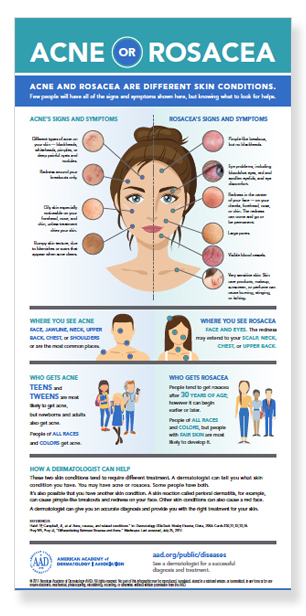 Chart on acne or rosacea