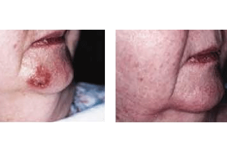 A before and after photo of a patient's skin reacting to imiquimod to treat early basal cell carcinoma skin cancer on her chin.