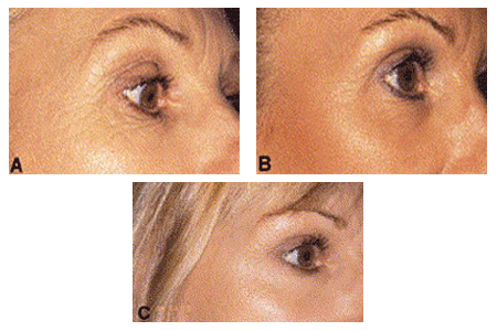 Woman before and after treatment for sun-damaged skin
