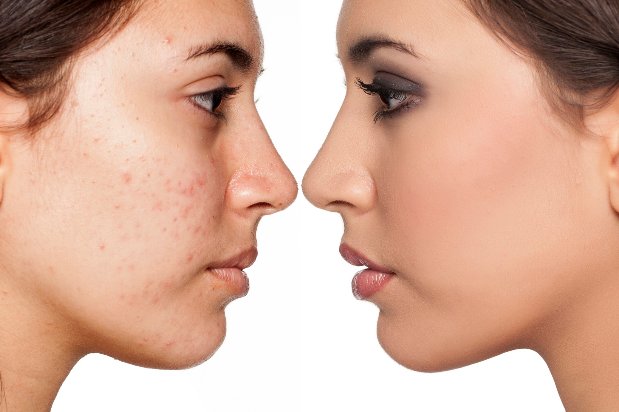 How Long Can I Take An Antibiotic To Treat My Acne
