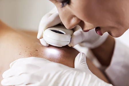 Female dermatologist examining male patient's skin with dermascope, carefully looking at a mole for signs of skin cancer