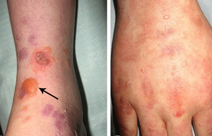 Epidermolysis bullosa acquisita fluid-filled blisters and small white bumps, called milia